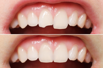 Cosmetic dentistry Ahmedabad, Gum recontouring and depigmentation, Bonding, Tooth Jewellery, Teeth Whitening