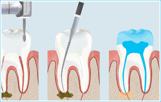 Root Canal Treatement in Ahmedabad, Smilez Dental Clinic